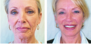 Facelift patient of Dr. Moser Before and after photos