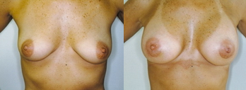 Moser Breast Aug patient
