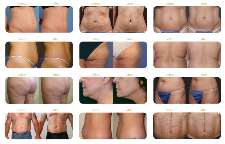 TruSculpt vs Coolsculpting - Non Surgical Body Contouring