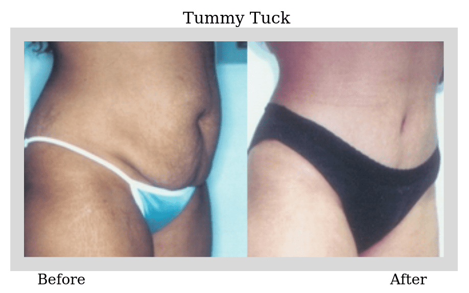 Before and After Tummy Tuck Surgery photo