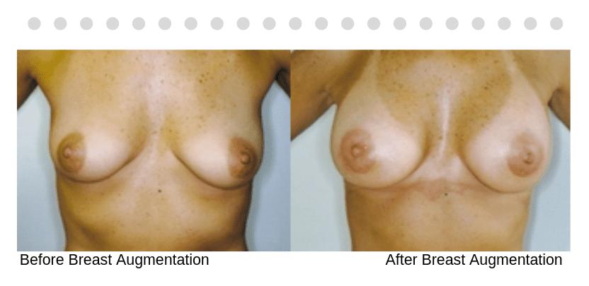 breastaug001b-thumb-1_Blog_Ba_Img
