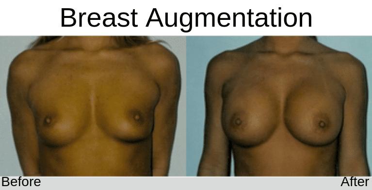 breastaug005a-thumb_Blog_BA_Img (1)