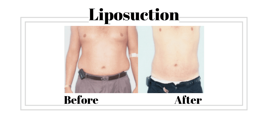 Liposuction patient before and afters
