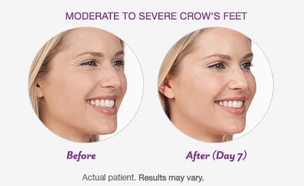 BOTOX® Cosmetic Before Patient 1