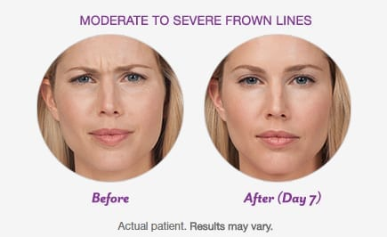 BOTOX® Cosmetic After Patient 1