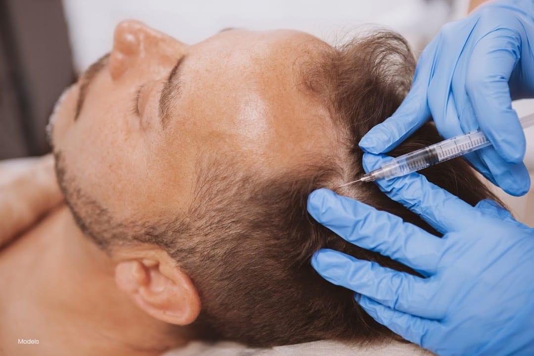 Man getting hair restoration