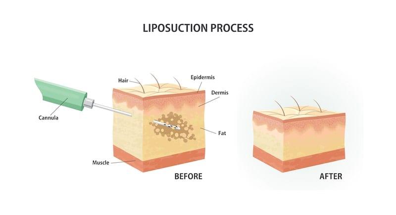 Illustration demonstrating how liposuction is performed.